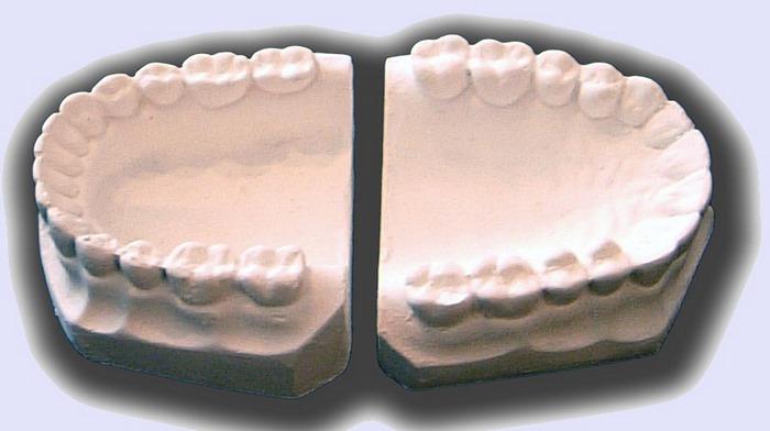 کاربرد گچ,کاربرد گچ پاریس,کاربرد گچ در دندان پزشکی,